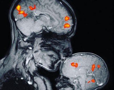 Ученые на МРТ показали, что происходит в мозгу мамы и ребенка при поцелуе
