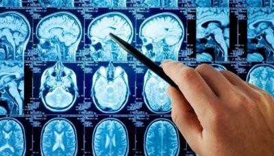 Врачи назвали симптомы инсульта, которые люди игнорируют