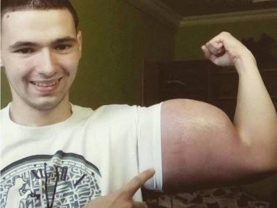 Врачи отказались ампутировать руки Кириллу Терешину