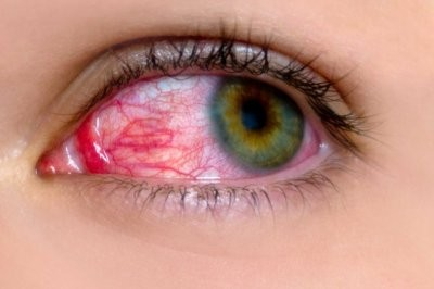 Зарубежные эксперты: о серьезных заболеваниях могут рассказать глаза и волосы на теле